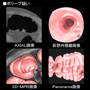 大腸CT検査のイメージ